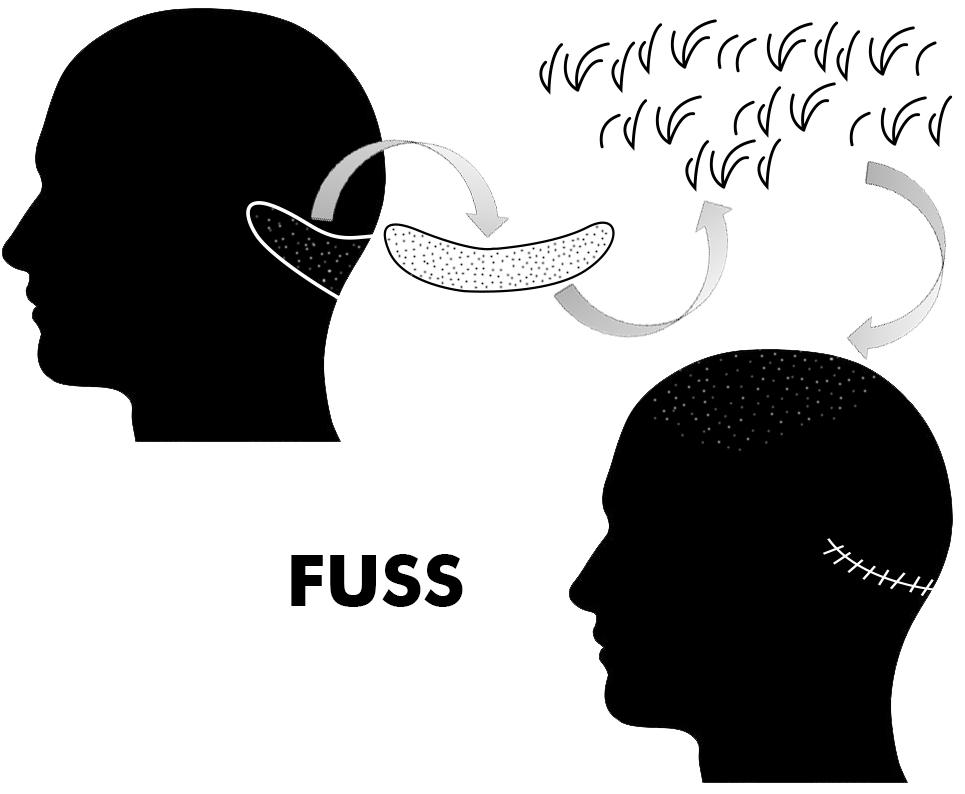 Trasplante de pelo con la técnica FUSS